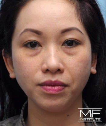 Before Full Face Treatment