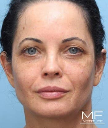 After Refinement Full Face Treatment
