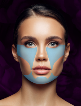 Nonsurgical Facelift (MFI Lift)