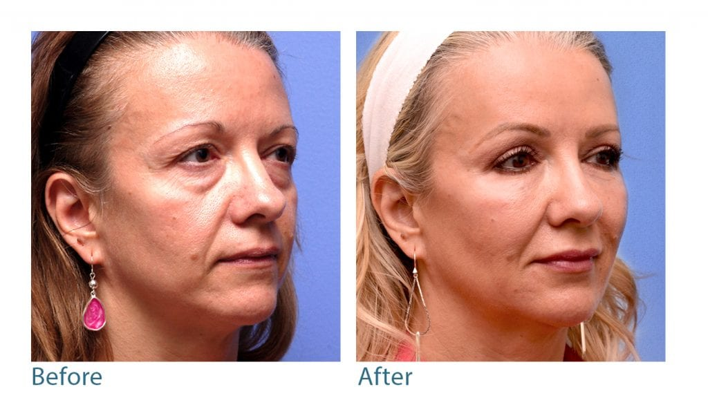 Botox before-and-after in San Francisco.