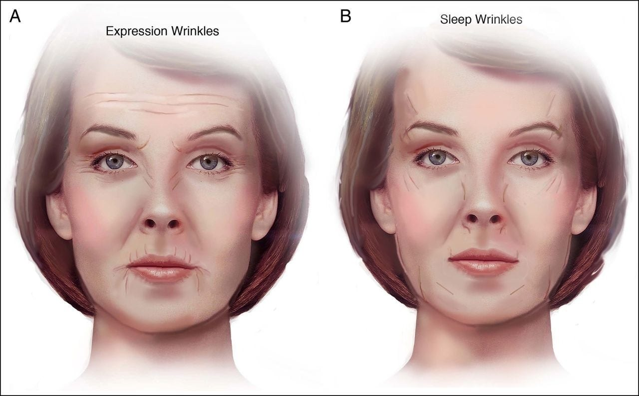 expression wrinkles vs. sleep wrinkles