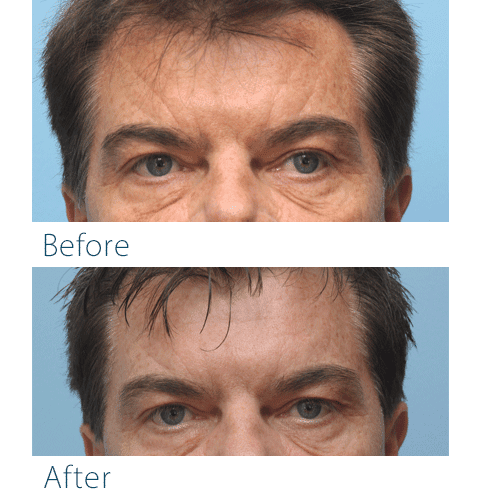 Before-and-after fillers for sleep lines