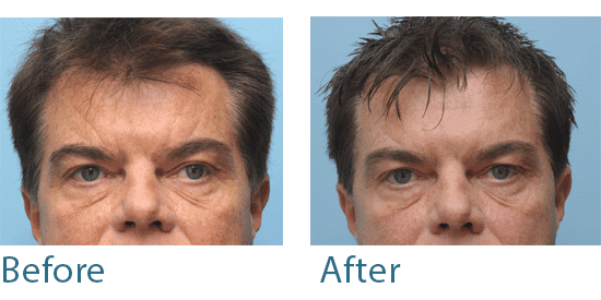 before and after male treatment for side sleeping wrinkles
