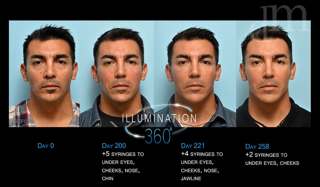 See this patient's dermal filler treatment pathway in San Francisco.