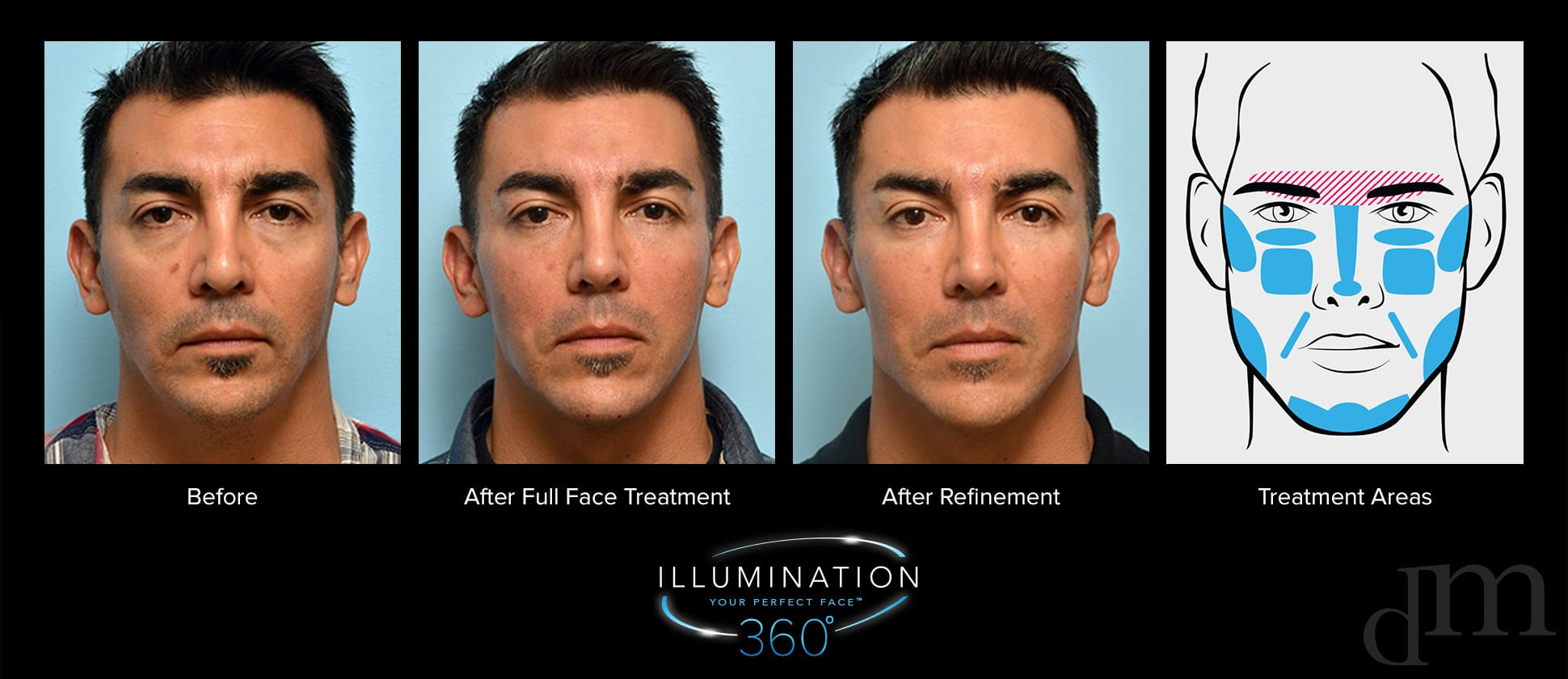male before, after full face treatment, after refinement, treatment areas