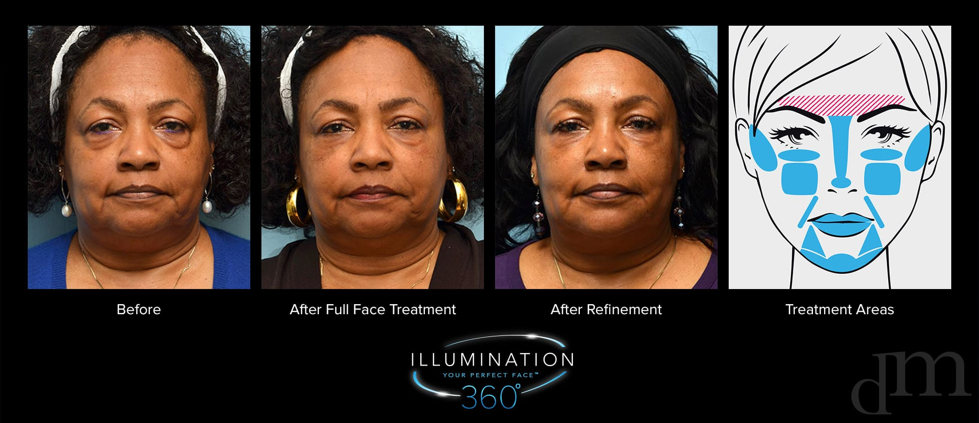 Older woman before and after full face treatment, after refinement treatment, and diagram of treatment areas.