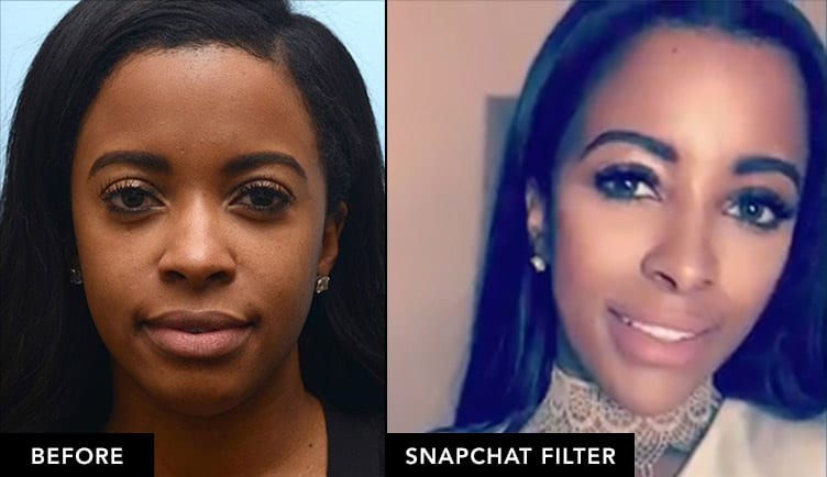 Jessica before and after snapchat filter