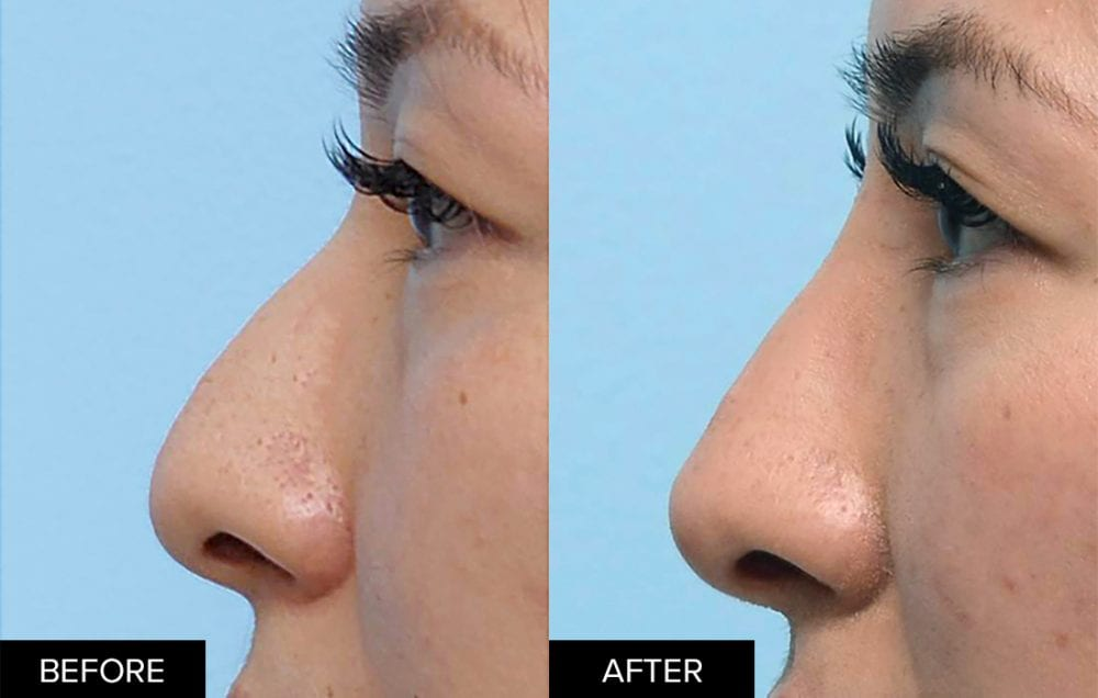 Nonsurgical rhinoplasty with dermal fillers before and after profile