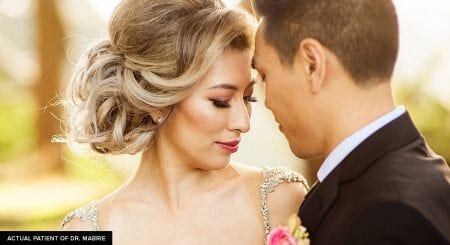 Candid wedding photo of patient who had the nonsurgical rhinoplasty procedure