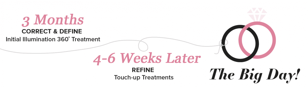 Nonsurgical treatment wedding timeline