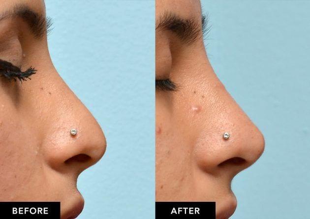 BA-nasal-tip