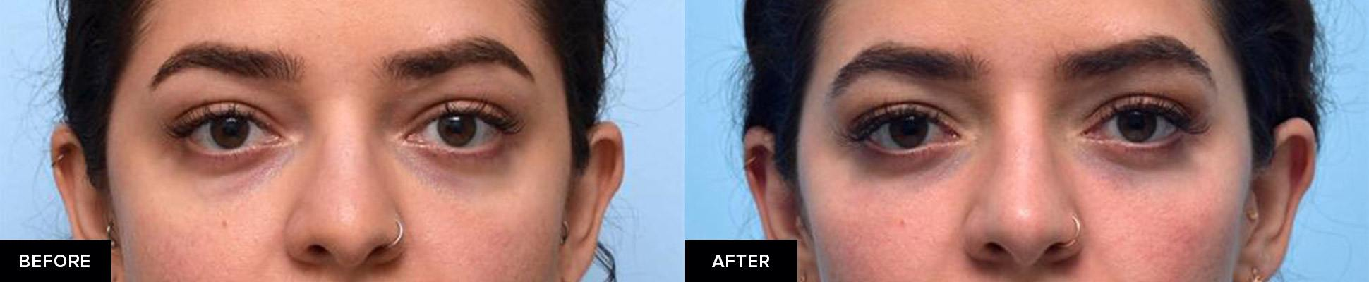 Restylane dermal filler in tear troughs before and after