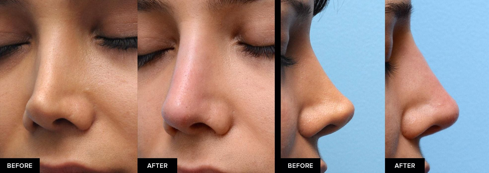 Nonsurgical rhinoplasty before-and-after from 2 perspectives