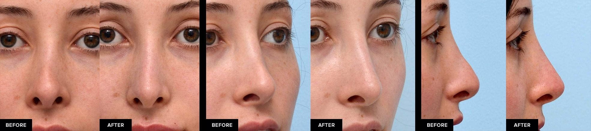 Nonsurgical rhinoplasty before-and-after from 3 perspectives