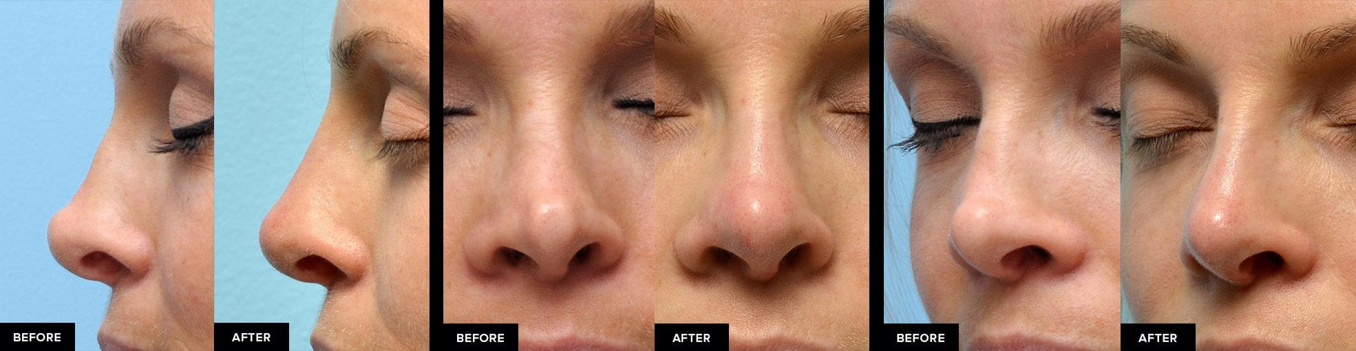 Nonsurgical rhinoplasty from 3 angles