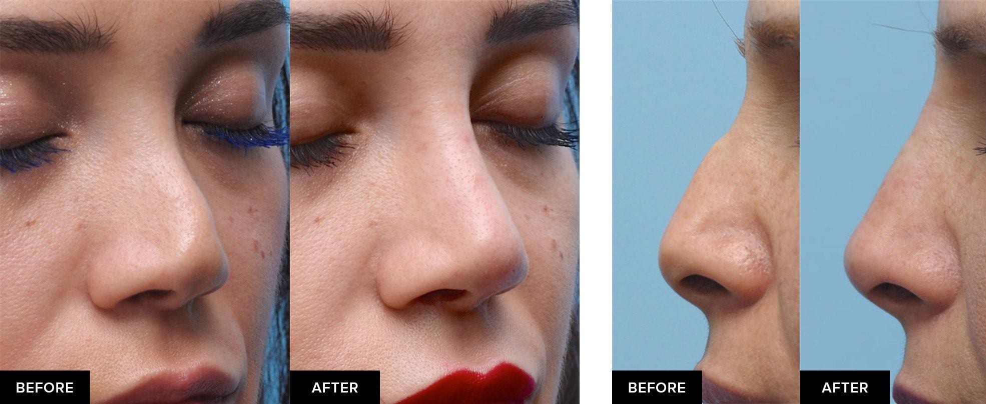 Nonsurgical rhinoplasty to smooth a nasal hump