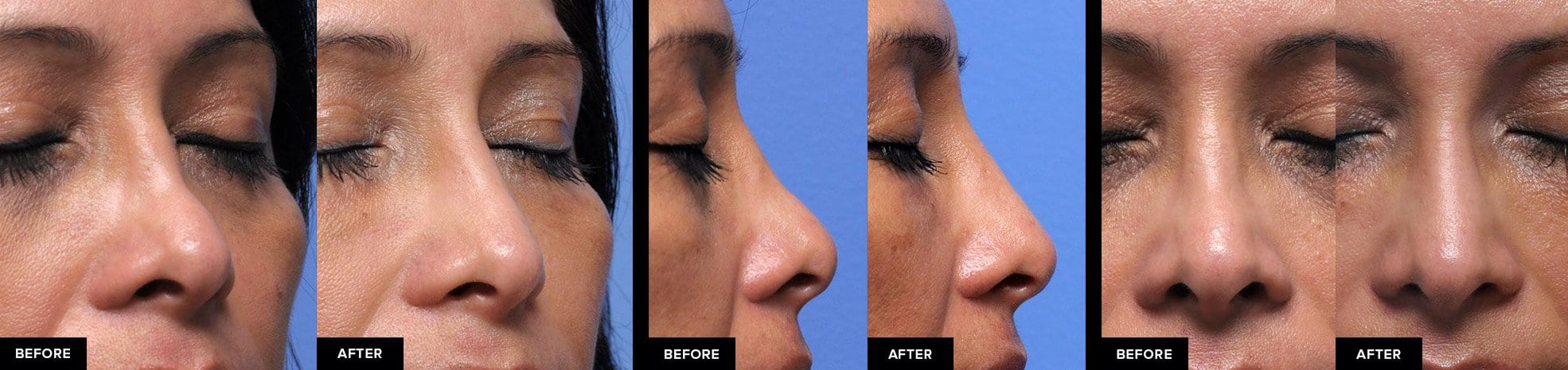 Nonsurgical rhinoplasty to add volume to the bridge