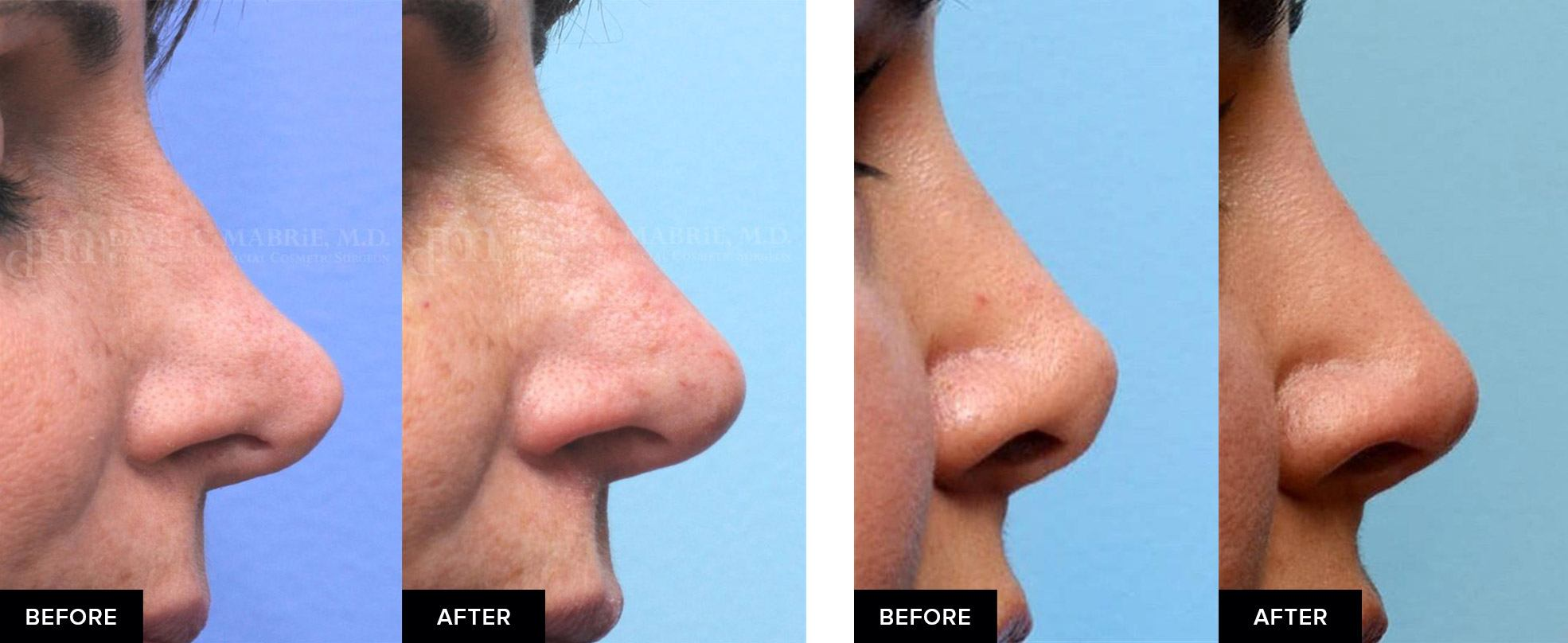 Nonsurgical rhinoplasty before-and-afters from profile view