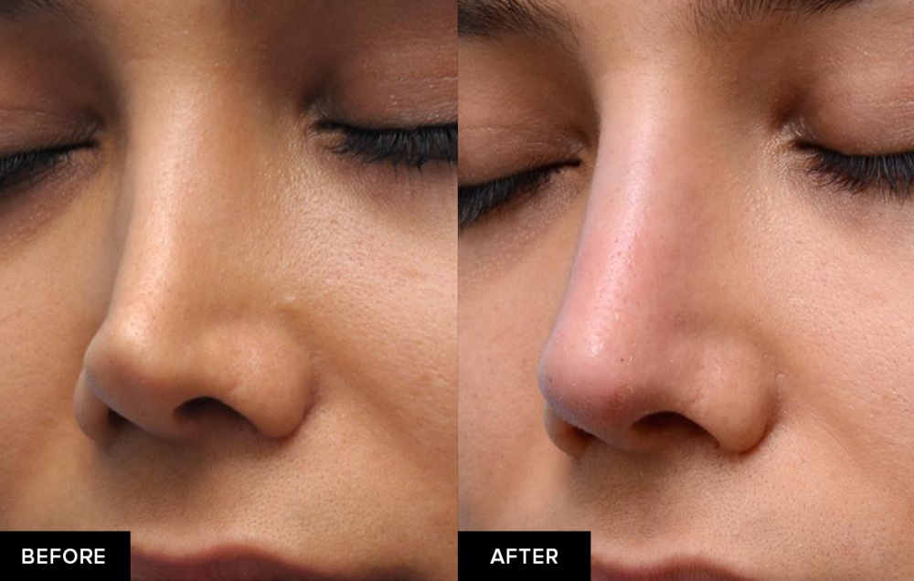 Nonsurgical rhinoplasty before-and-after from the profile view