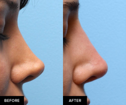 before and after nose fillers after surgical rhinoplasty
