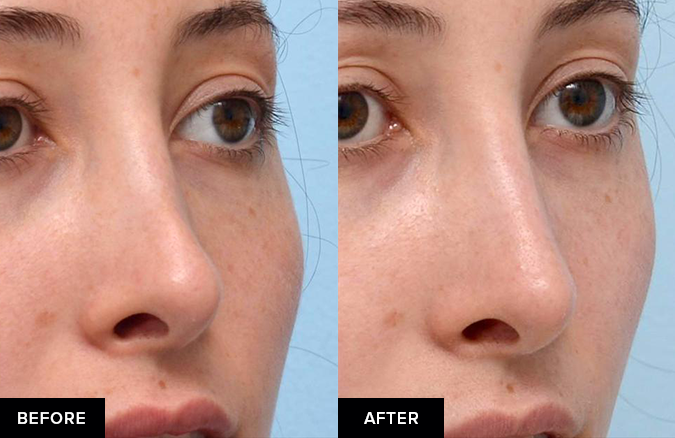Nonsurgical rhinoplasty before-and-after from oblique view.