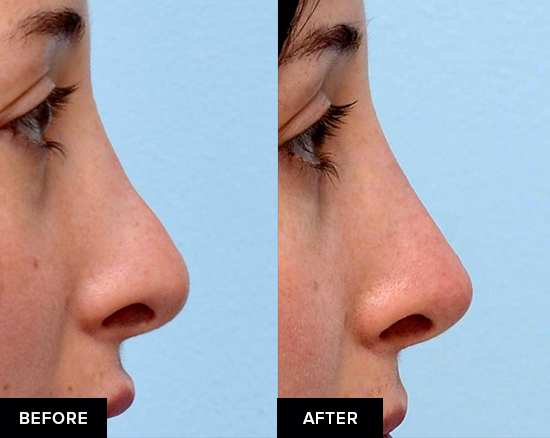 Nonsurgical rhinoplasty before-and-after from side view.