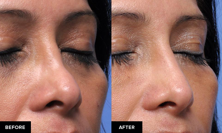 Nonsurgical rhinoplasty to add volume to the bridge, oblique view.