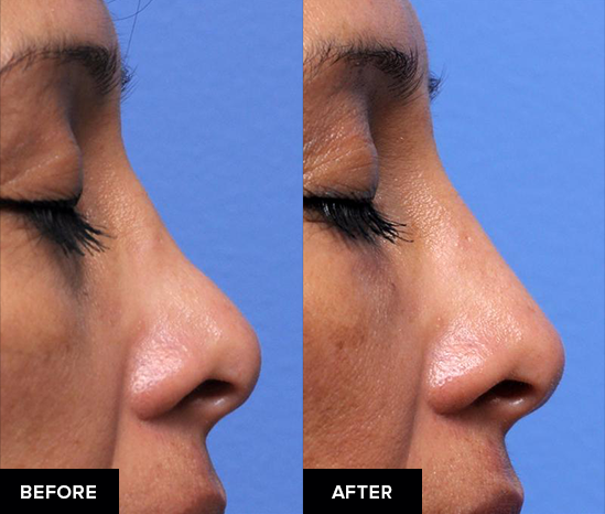 Nonsurgical rhinoplasty to add volume to the bridge, side view.