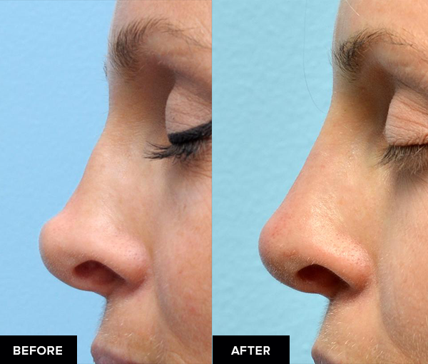 Nonsurgical rhinoplasty from side view.