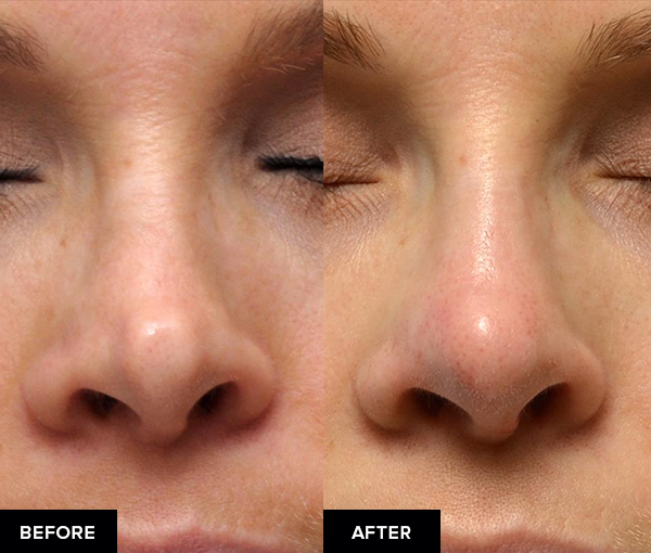 Nonsurgical rhinoplasty from front view.