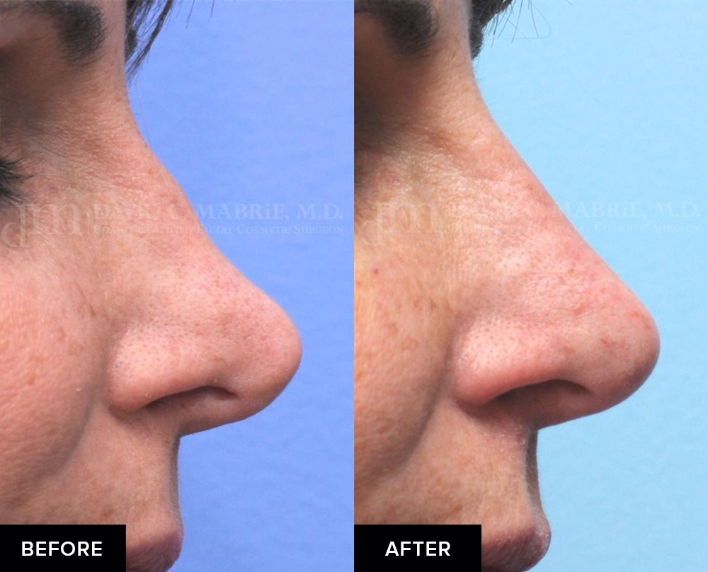 Nonsurgical rhinoplasty before-and-after from profile view
