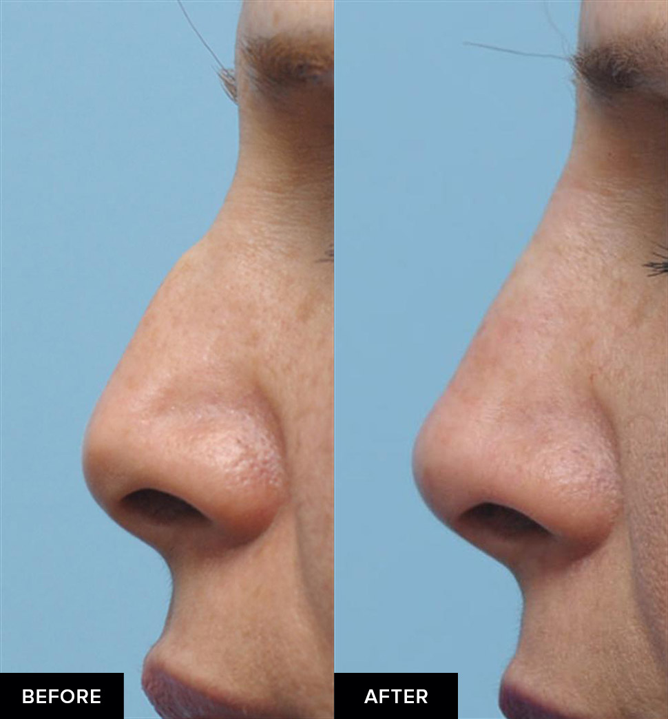 Nonsurgical rhinoplasty to smooth a nasal hump, side view