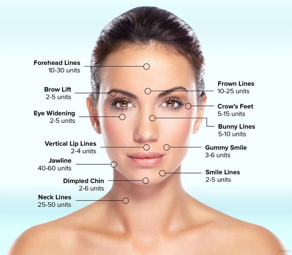 BOTOX® Cosmetic in San Francisco, CA | Dr  David C  Mabrie