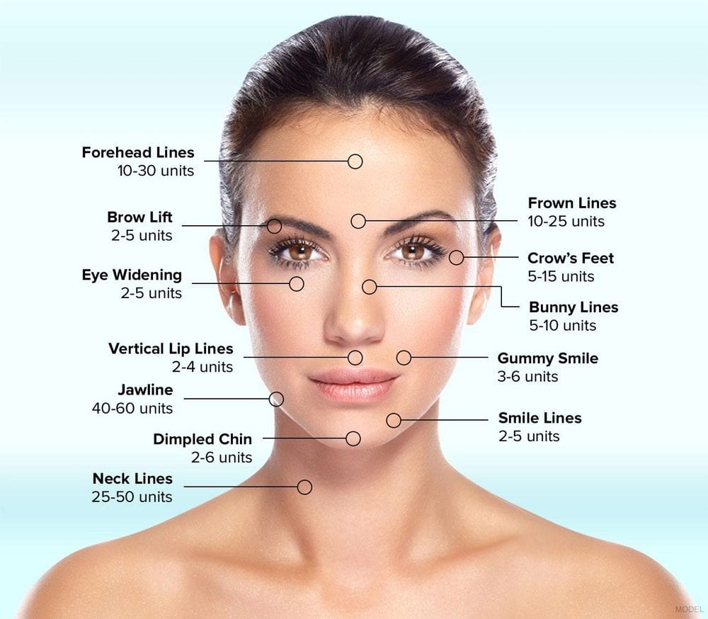 Units of Botox needed for each location of the face