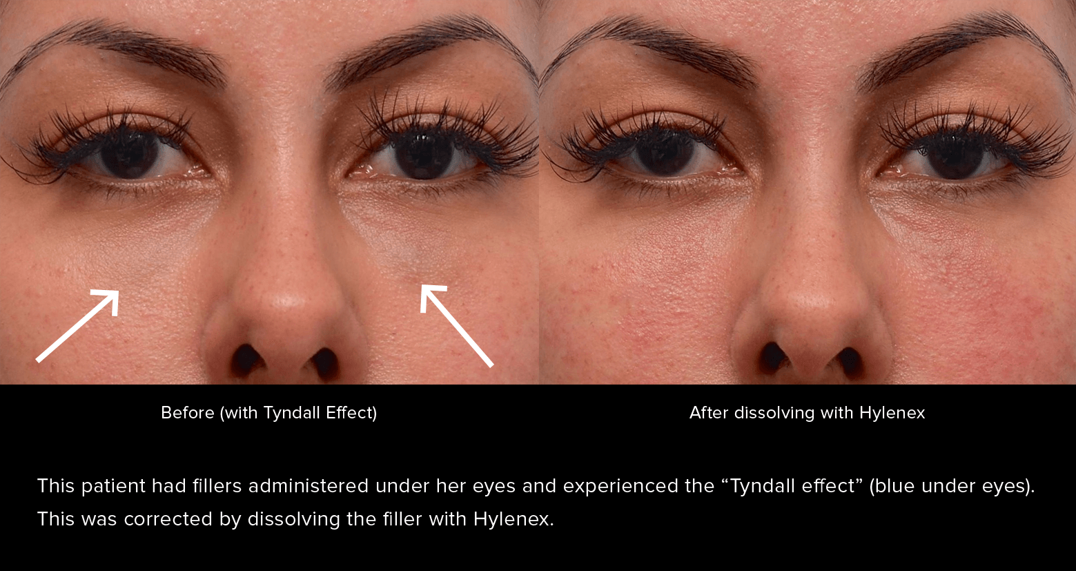 Under-eye filler before and after. This patient had fillers administered under her eyes and experienced the Tyndall effect (blue under eyes). This was corrected by dissolving the filler with Hylenex.