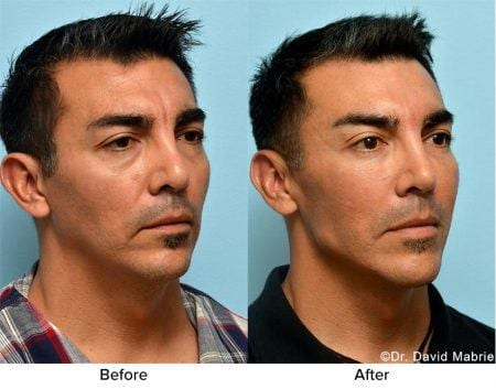 Before and after jaw angle definition and enhancement