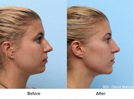 Female jawline contouring before and after
