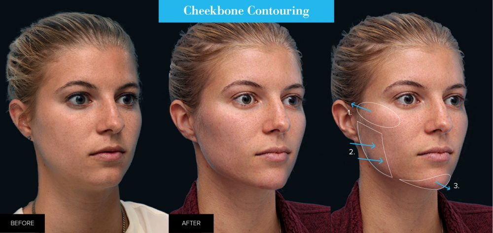 female before and after cheekbone contouring