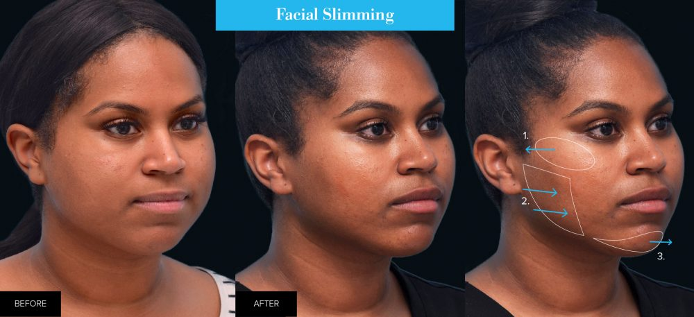 female before and after facial slimming