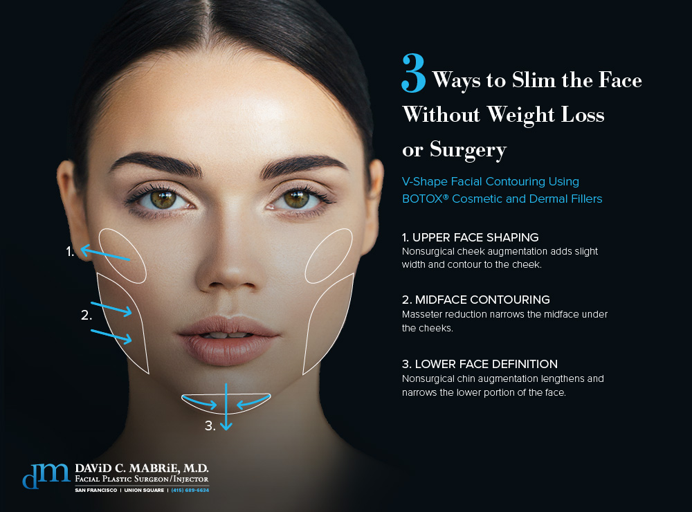 Face Slimming With Botox In The San Francisco Bay Area Dr David Mabrie