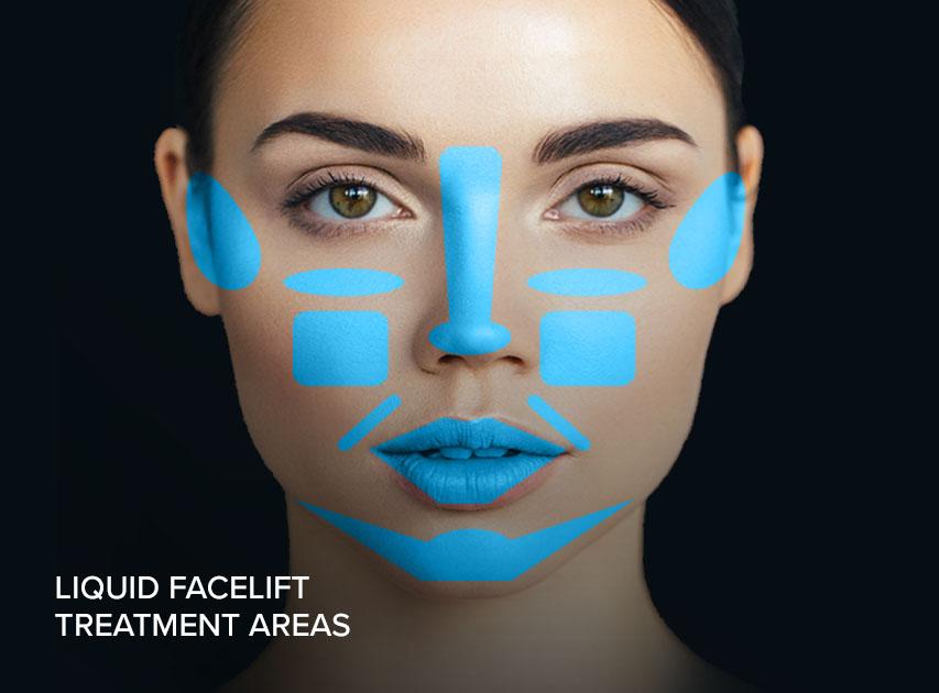 liquid facelift treatment areas