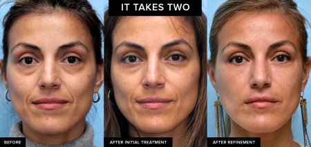 Dermal filler results created by Dr. David Mabrie in San Francisco, CA after a series of treatments.