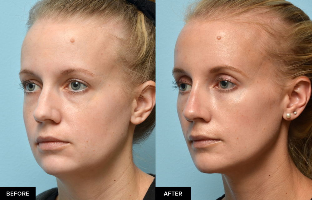 Female before and after jawline fillers