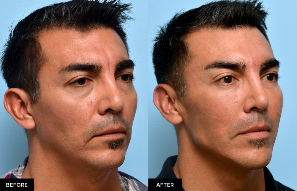 Male before and after jawline fillers