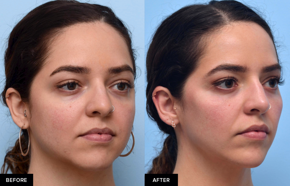 Female before and after jawline slimming