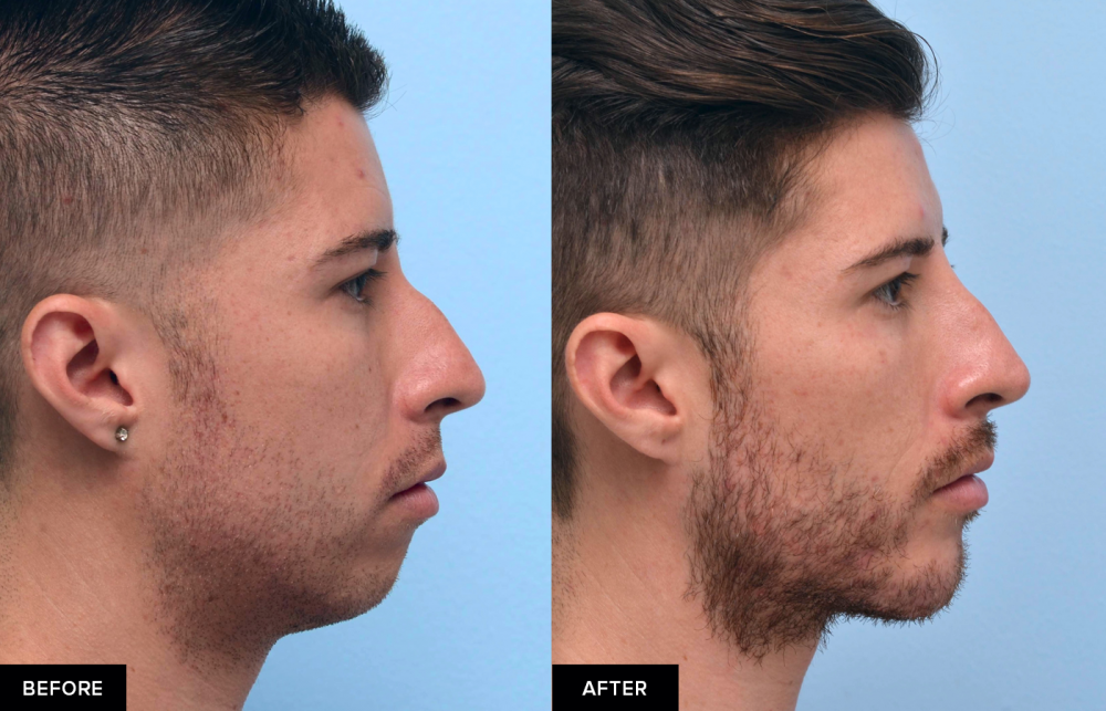 Male before and after profile chin augmentation with fillers