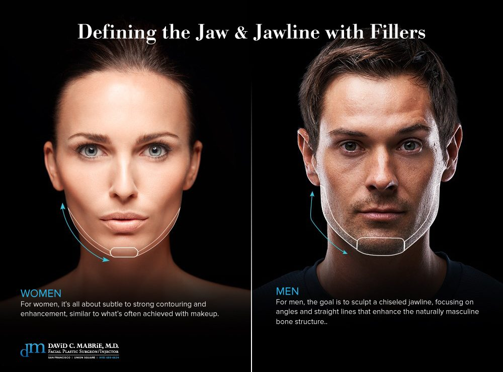 Defining the Jaw & Jawline With Fillers