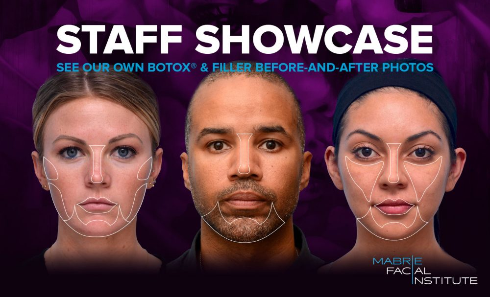 Staff Showcase: See Our Own BOTOX & Filler Results