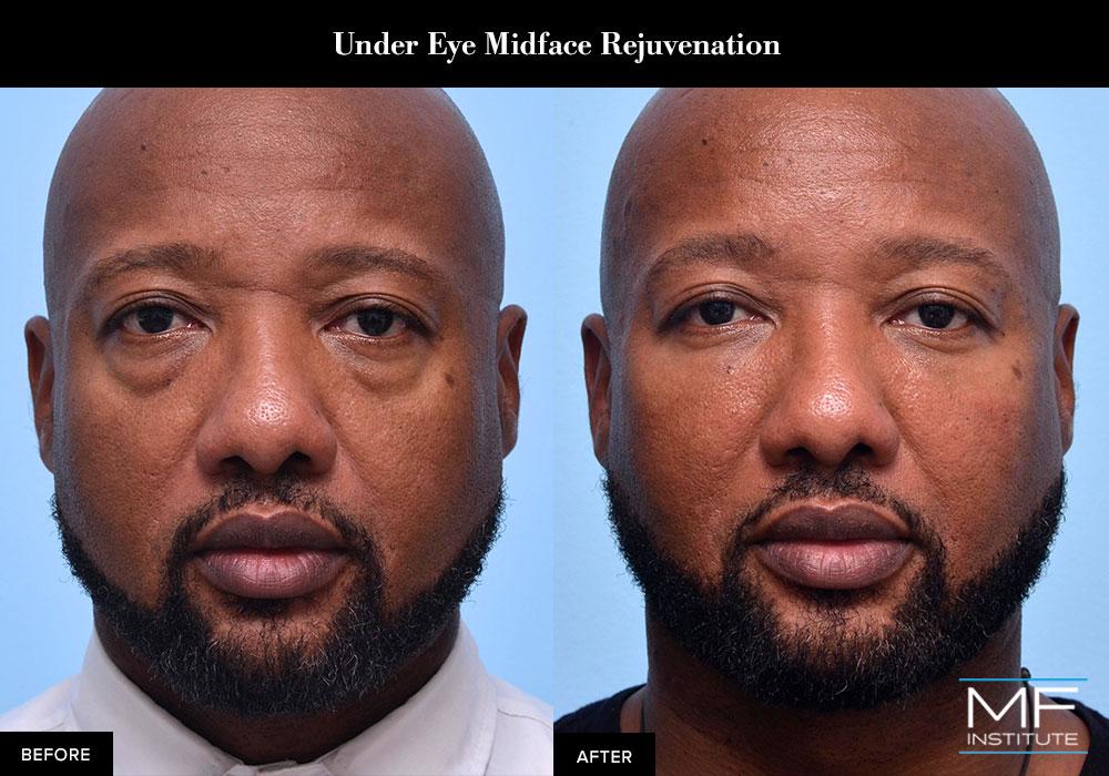 Upper face rejuvenation of the eyes using dermal fillers