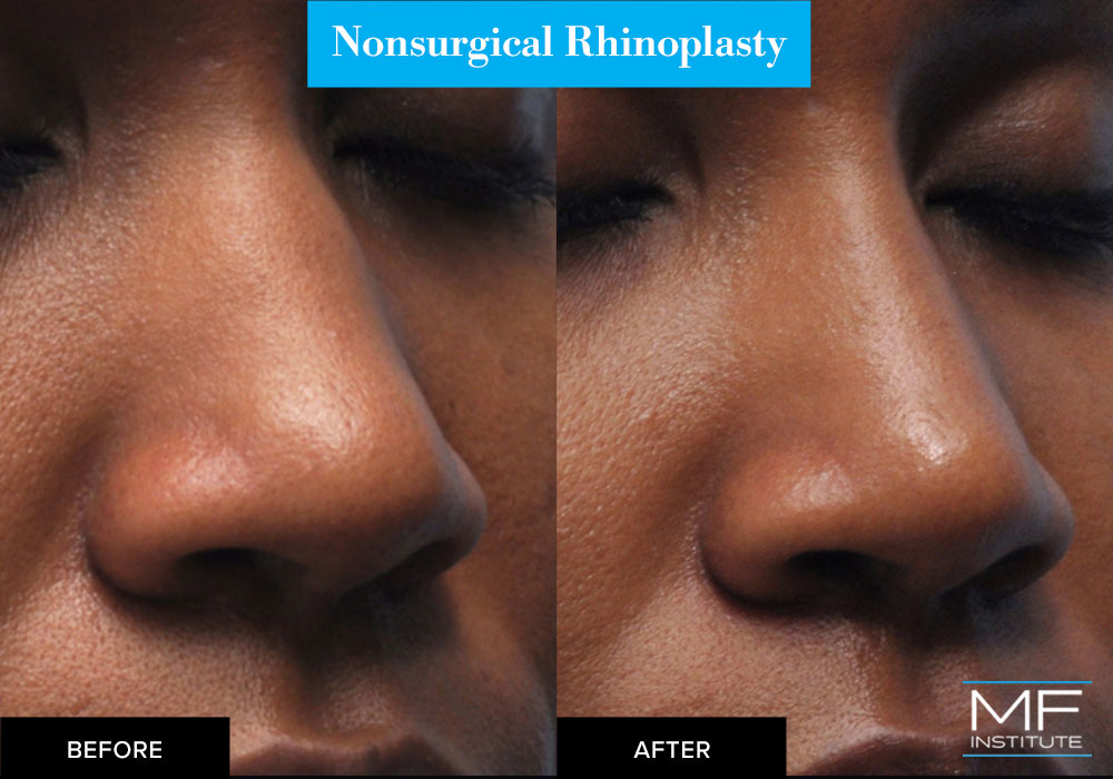 nonsurgical nose job with fillers before and after